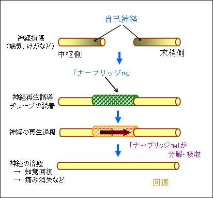 神経再生誘導チューブ「ナーブリッジ™」による治療過程(模式図)